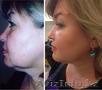 Альтера Систем – SMAS лифтинг лица Салон красоты «Signature» Костанай